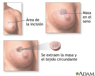 cirurgia concervadora de la mama