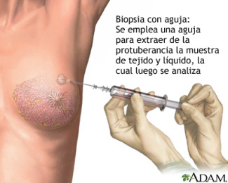 Biòpsia càncer mama