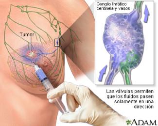 Biòpsia gangli centinella